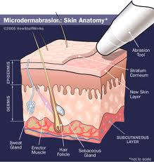 Microdermabrasion Treatment In Vancouver
