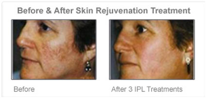skin-rejuvenation-before-after-3-ipl-treatment